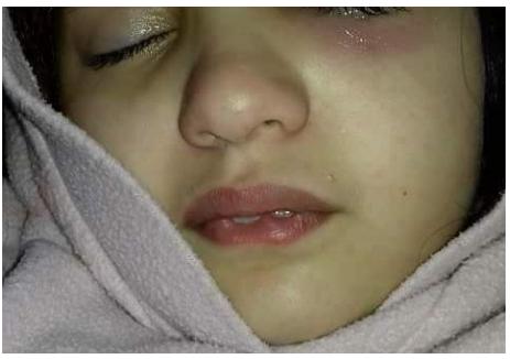 بمدينة مكناس وفاة الطفلة هبة بعض الصراع النفسي للتعذيب الذي تسببت فيه معلمتها