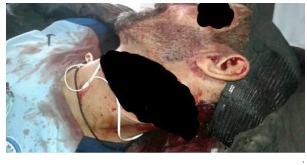 أول جريمة في رمضان ..شاب يقتل والده بثلاثة طعنات سكين أمام الجميع